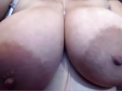 Immense areola  with